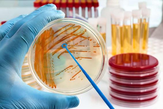 Bakteri Streptococcus