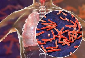 Bakteri Tuberkolusis