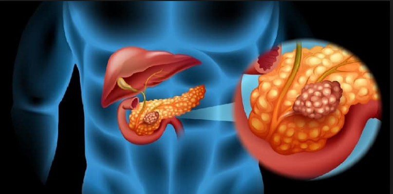 Faktor penyebab kerusakan pankreas